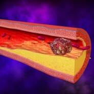 Principi attivi che abbassano il Colesterolo